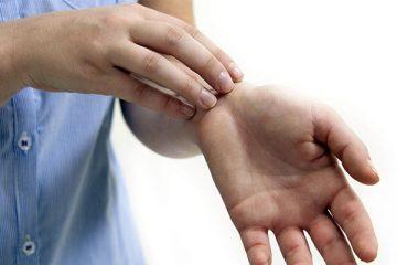 Những tác nhân gây bệnh Eczema nên tránh