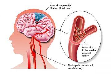 Phân biệt cơn đau nửa đầu và cơn đau do đột quỵ