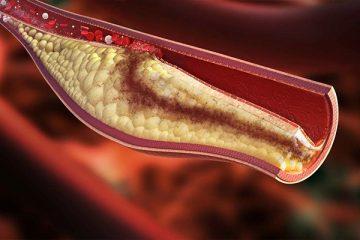 Điều trị tăng Lipid máu như thế nào?