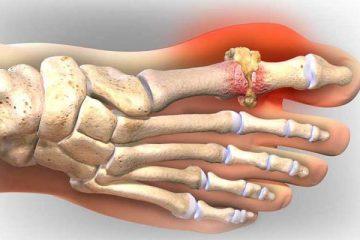 Tổng hợp những nguyên nhân gây bệnh gout