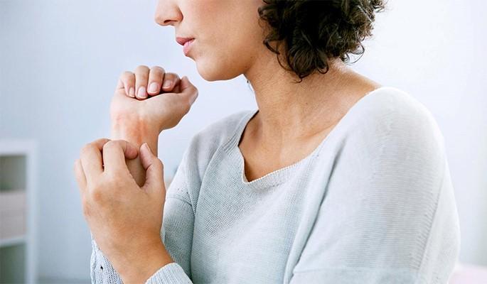 tong-quan-va-trieu-chung-benh-eczema