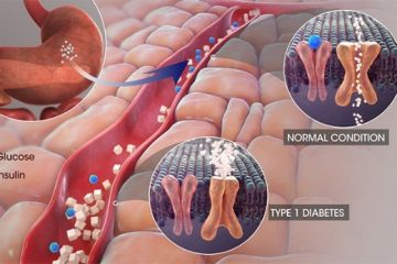 Triệu chứng sớm và điển hình của đái tháo đường type 1