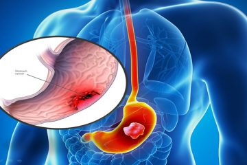 Nguyên nhân, triệu chứng của ung thư dạ dày