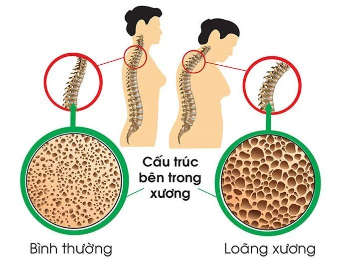 loang-xuong