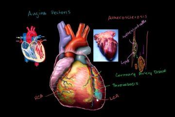 Suy tim và những kiến thức quan trọng về Glycoside tim