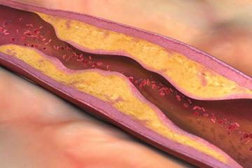 Nguyên nhân gây xơ vữa động mạch