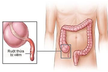 Nguyên nhân và cách điều trị viêm ruột thừa